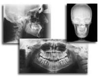 radiologie_dentara_panoramica_si_craniu3